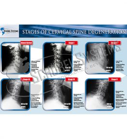 curv_STAGES OF CERVICAL DEGENERATION copia